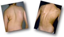 scoliosisbackimage Scoliosis